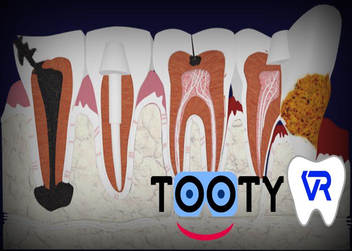 Un modèle multipathologies dentaires en VR