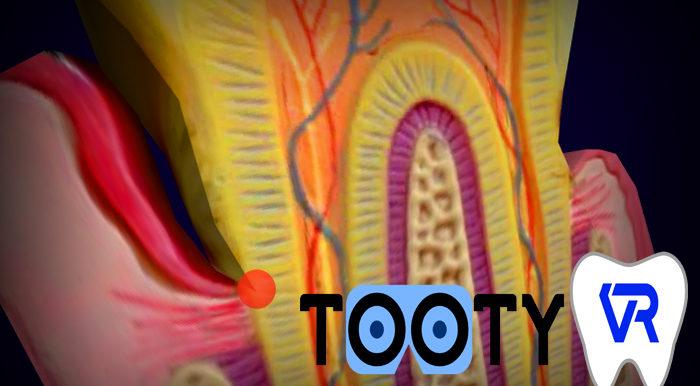 Nouveau Tooty Model : la poche parodontale démystifiée en VR