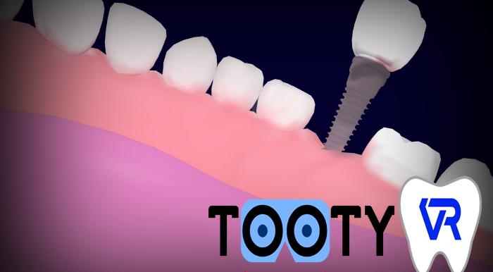 Nouveau Tooty Model : implant unitaire et bridge sur implant