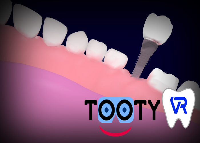 Nouveau Tooty Model : implant unitaire et bridge sur implant
