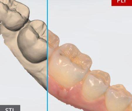 TootyVR désormais compatible avec toutes les caméras 3D intra orale